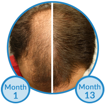 "Belgravia Centre Hair Loss Clinic Thinning Hair Treatment Client Success Story ""width ="" 350 ""height ="" 355 ""/>   <p class="