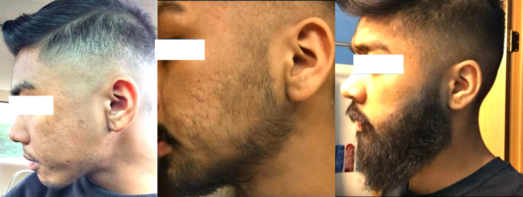 "Témoignage d'un homme asiatique utilisant un minoxidil sur son visage, composé de 3 panneaux avant et après. ""Width ="" 1030 ""height ="" 388 ""srcset ="" https://beardresource.com/wp-content/uploads/2016/06/minoxidil -beard-before-after-results-1.jpg 1030w, https://beardresource.com/wp-content/uploads/2016/06/minoxidil-beard-before-after-results-1-300x113.jpg 300w, https : //beardresource.com/wp-content/uploads/2016/06/minoxidil-beard-before-after-results-1-768x289.jpg 768w, https://beardresource.com/wp-content/uploads/2016/ 06 / minoxidil-barbe-avant-après-result-1-1024x386.jpg 1024w, https://beardresource.com/wp-content/uploads/2016/06/minoxidil-beard-before-after-results-1-640x241 .jpg 640w, https://beardresource.com/wp-content/uploads/2016/06/minoxidil-beard-before-after-results-1-681x257.jpg 681w ""values ​​="" (largeur maximale: 1030px) 100vw , 1030px"