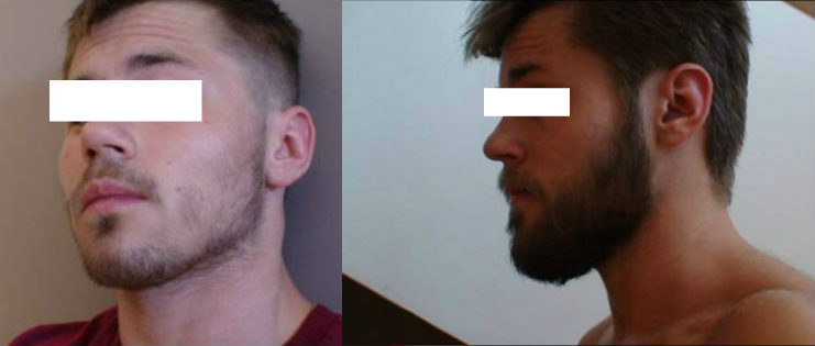 "Homme avec une barbe inégale sur les joues utilisant le minoxidil avant et après les résultats. ""Width ="" 741 ""height ="" 315 ""srcset ="" https://beardresource.com/wp-content/uploads/2016/06/rogaine-facial- hair-before-after-results.jpg 741w, https://beardresource.com/wp-content/uploads/2016/06/rogaine-facial-hair-before-after-results-300x128.jpg 300w, https: // beardresource.com/wp-content/uploads/2016/06/rogaine-facial-hair-be- after-results-640x272.jpg 640w, https://beardresource.com/wp-content/uploads/2016/06/rogaine -facial-hair-before-after-results-681x289.jpg 681w ""tailles ="" (largeur maximale: 741px) 100vw, 741px"