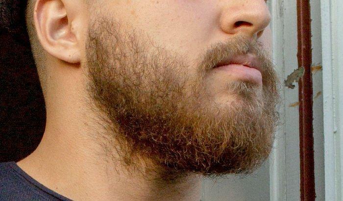 exemple habituel de barbe de 2 mois