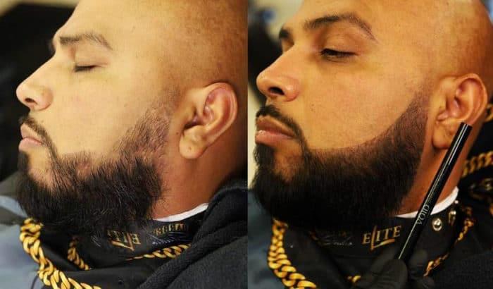 Résultats de remplissage de barbe void homme